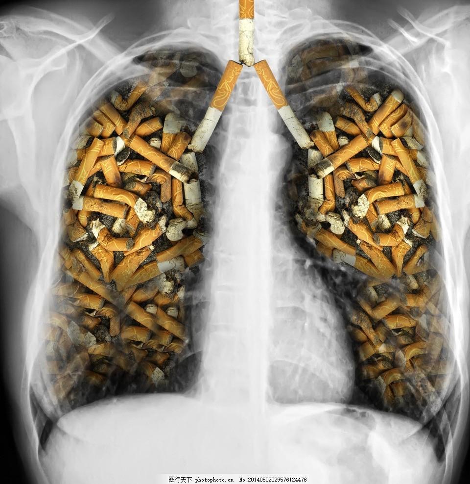 戒烟广告,肺部 吸烟有害健康 不吸烟 禁止吸烟